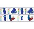 Математическое моделирование контактных напряжений и объема движений в локтевом суставе при переломе блока плечевой кости сосмещением
