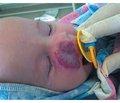 Современные возможности в хирургическом лечении обширных гемангиом у детей