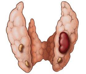 Диференціальна діагностика первинного та вторинного гіперпаратиреозу, спричиненого дефіцитом вітаміну D