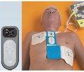 Сердечно-легочная и церебральная реанимация: новые рекомендации Европейского совета по реанимации 2015 г.