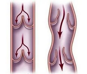 Патогенетическое лечение варикозной болезни