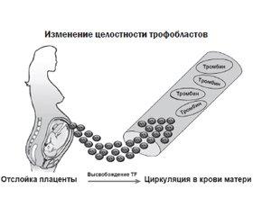 Патогенез и лабораторная диагностика ДВС-синдрома в акушерстве