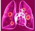 Легеневі ураження у ВІЛ-позитивних осіб (короткий огляд)