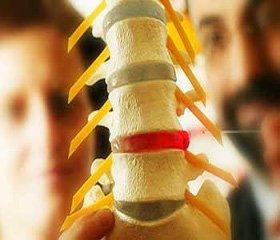 Синдром системного ограничения подвижности позвоночника у пациентов с дорсопатией