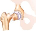 Фармакологическая коррекция нарушений ремоделирования при замедленной консолидации чрезвертельного перелома бедренной кости на фоне системного остеопороза