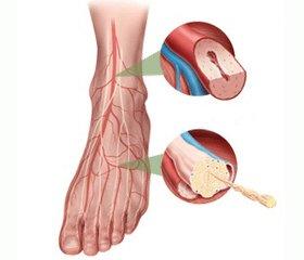 Антикоагулянтна терапія беміпарином у комплексному лікуванні хворих на діабетичну периферичну невропатію з прихованою ішемією тканин нижніх кінцівок