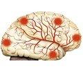 Ступені дисциркуляторної енцефалопатії і їх симптоми (частина 1)