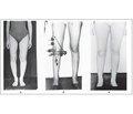 Аппаратный внеочаговый остеосинтез при коррекции оси нижней конечности