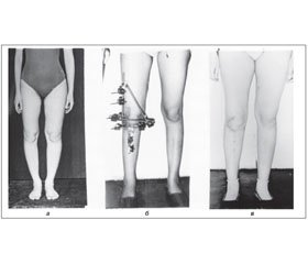 Frame Extrafocal Osteosynthesis for Lower Extremity Axis Correction