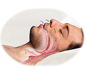 The risk of obstructive sleep apnea syndrome in patients with type 2 diabetes mellitus