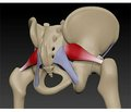 Використання прегабаліну при синдромі грушоподібного м'яза