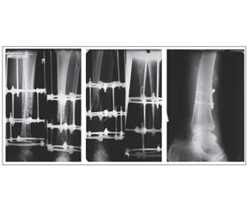 Modern Approach to Treatment of Chronic Osteomyelitis in Patients with Iodine Deficiency Using High-Intensity Laser