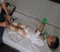 Діагностичні критерії рухових порушень у немовлят із позицій доказової медицини