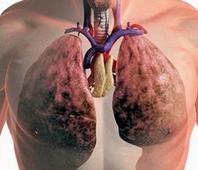 Хроническое обструктивное заболевание легких: определение, эпидемиология, патофизиология, клиническая характеристика, диагностические критерии, классификация (сообщение 1)