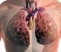 Профессиональные заболевания легких: оптимизация диагностических мероприятий