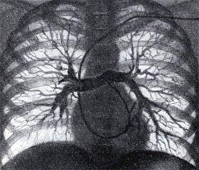 Эффективность динамической компьютерно-томографической ангиопульмонографии в диагностике и лечении тромбоэмболии легочной артерии