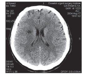 Когнітивне функціонування ухворих ізлакунарним інсультом залежно від типу церебральної атрофії