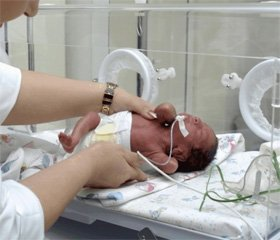 The state of lipid peroxidation and antioxidant defense system in newborns requiring artificial lung ventilation