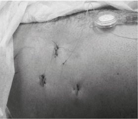 Quality of life after arthroscopic treatment for initial stages of coxarthrosis