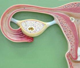 Диагностические и прогностические критерии   полноценности репаративной регенерации в матке   после реконструктивно-пластических операций у женщин с лейомиомой матки