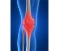 Peculiarities of course osteoarthritis of the knee joints depending on the degree of comorbidity and damage of hepatobiliary system