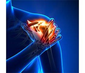 Застосування радіальної ударно-хвильової терапії при больових синдромах плеча після мозкового інсульту