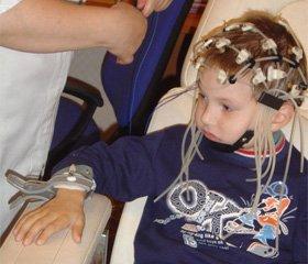 Особливості електроенцефалографічних характеристик у дітей, хворих на епілепсію
