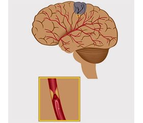Cerebroprotective Therapy as a Component of Intensive Care in Ischemic Stroke