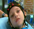 Досвід довготривалого нагляду за дітьми, хворими на епілепсію, у Харківській області