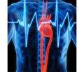 Ацетилсалициловая кислота — ключевая позиция в первичной и вторичной профилактике сердечно-сосудистых заболеваний и их осложнений
