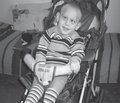 Приклад ренопротективної терапії в дитячій нефрології: клінічний випадок
