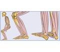Влияние смещения периферического фрагмента пяточной кости при ее переломе на функцию трехглавой мышцы голени