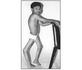 Poliomyelitis in Children
