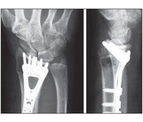 The Issue of Treatment of Common Distal Radius Fractures