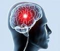 Рання реабілітація після гострих ішемічних порушень мозкового кровообігу