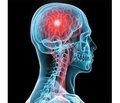 Медична допомога хворим на ішемічний інсульт у перші години розвитку захворювання