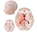 Consequences of intra- and postnatal cerebral ischemia with psychomotor and speech delay (Q04.9)