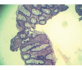 Гендерні та вікові особливості морфологічного стану слизової оболонки товстої кишки хворих на хронічні запальні захворювання кишечника