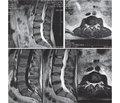 Аналіз ефективності використання L-лізину есцинату при лікуванні дискогенної радикулопатії