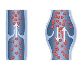 Ризик-менеджмент венозного тромбоемболізму в ортопедії