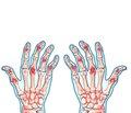 Новое в патогенезе псориатического артрита