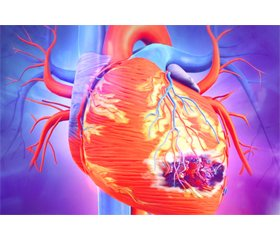 Post-infections and sepsis associated myocardial infarction: casuistic masks