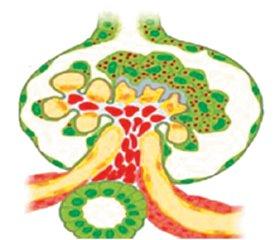 Focal segmental glomerulosclerosis: genetic analysis and target therapy