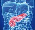 Триглицериды и осложнения острого панкреатита
