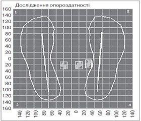 Динаміка біомеханічних та електроміографічних даних у випадках деформацій великого вертлюга стегнової кістки