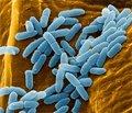 Pseudomonas aeruginosa: the modern reality of antibiotic therapy