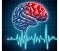 Клініко-неврологічні співставлення атеротромботичного та кардіоемболічного інсульту залежно від ступеня артеріальної гіпертензії