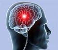 Клініко-нейрофізіологічна оцінка когнітивних порушень тапрофесійної дезадаптації упацієнтів зхронічною ішемією головного мозку
