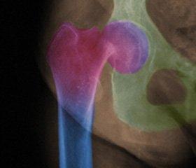 Хірургічне лікування деформації стегнової кістки за типом «палиці пастуха» при фіброзній дисплазії у дітей та підлітків