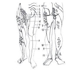 Болевые синдромы раннего периода после поясничных микродискэктомий